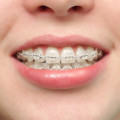 Do Braces Hurt?- Salmassian Orthodontics Valencia, CA