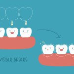 What is Invisalign and how does it work: