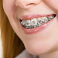 Orthodontist Stevenson Ranch CA