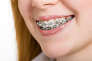 Orthodontist Stevenson Ranch CA