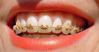 Gold Braces