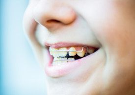 Invisalign Newhall CA