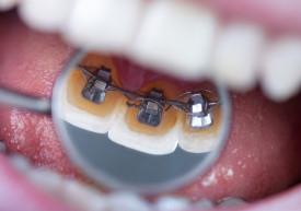Orthodontist Santa clarita