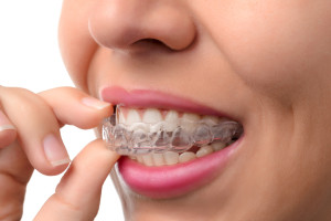 What is Invisalign and how does it work?