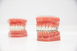 Common Orthodontics Problem