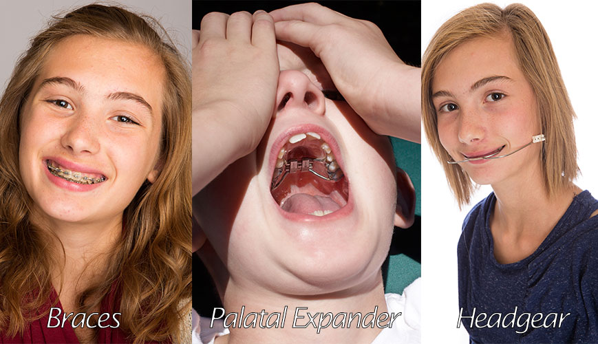 Orthodontics and Dentofacial Orthopedics Go Hand in Hand