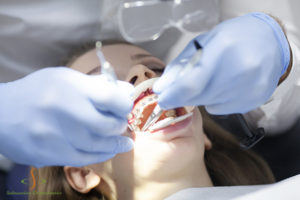 Surgical-Orthodontics