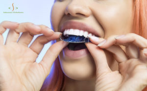 Everything You've Ever Wanted to Know About Retainers