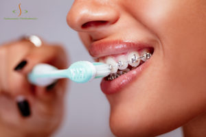 Oral Hygiene with Braces