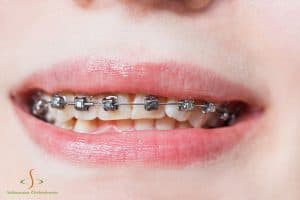 What Are Damon Braces?