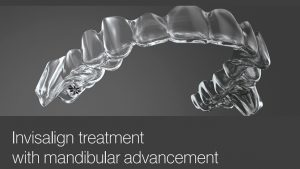 Invisalign with Mandibular Advancement