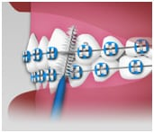 Interdental Toothbrush - Braces Care