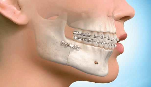 surgical orthodontics braces