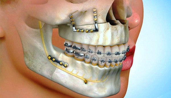 Surgical orthodontics - how it works?